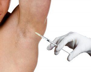 hyperhidrosisuk-botox-in-armpit